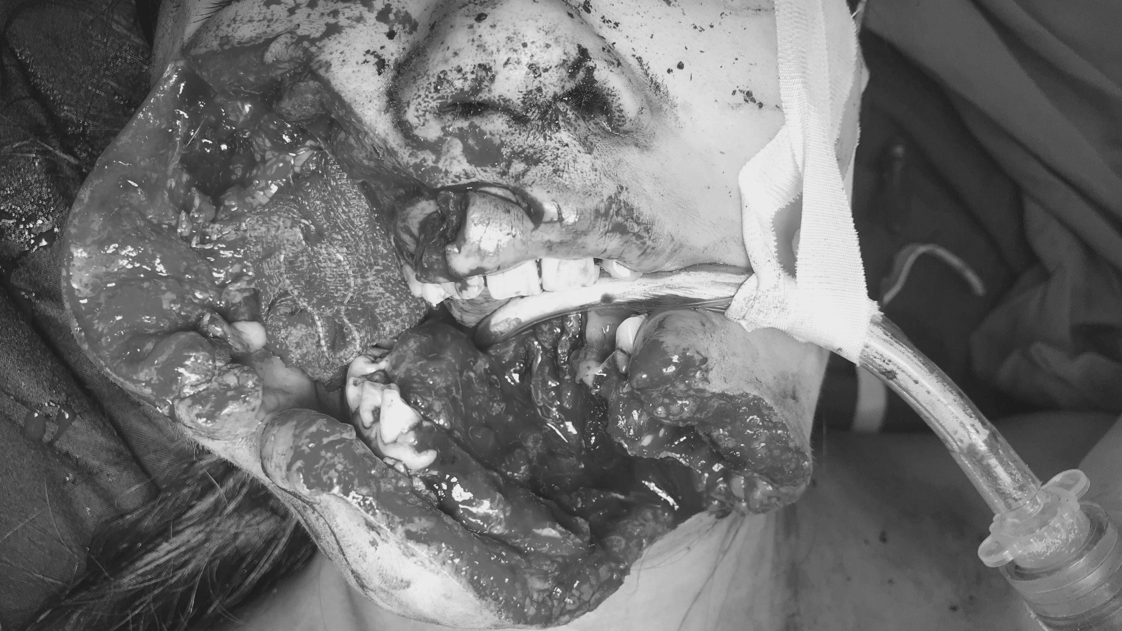 Phẫu thuật tái tạo thành công khuôn mặt vỡ đôi của một nữ bệnh nhân