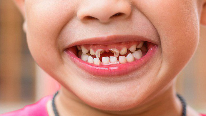Trẻ bị chảy máu chân răng có nguy hiểm?