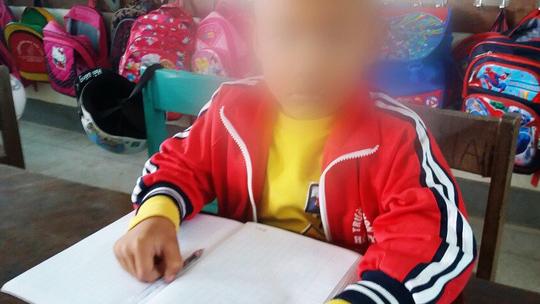 Công an vào cuộc vụ cô giáo tát học sinh lớp 1 phải nhập viện