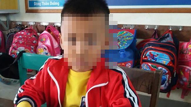 Tức giận vì học sinh chép nhầm đề, cô giáo tát học sinh 2 cái khiến em phải nhập viện